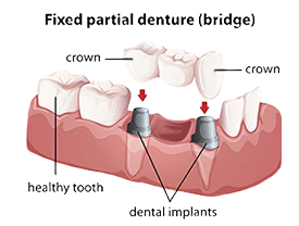 Dental Bridges | Fuchs & Fuchs Dentistry | Elk City, OK Dentist